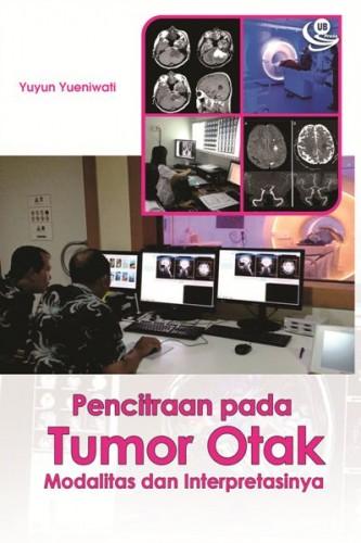 cover-Pencitraan pada tumor otak